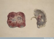 Watercolour drawing showing two views of a polycystic kidney. One view shows the external surface of the kidney, the other when the organ is bisected. 1880 George Francis Teniswood (Wellcome Images)